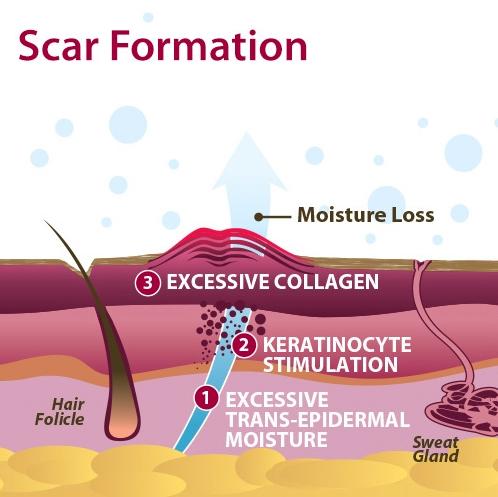 1-scar-formation.jpg