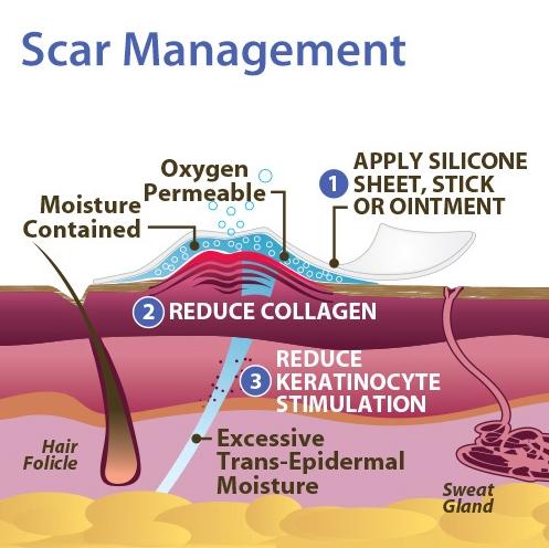 2-scar-management.jpg
