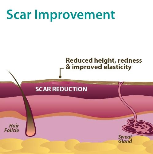 3-scar-improvement.jpg